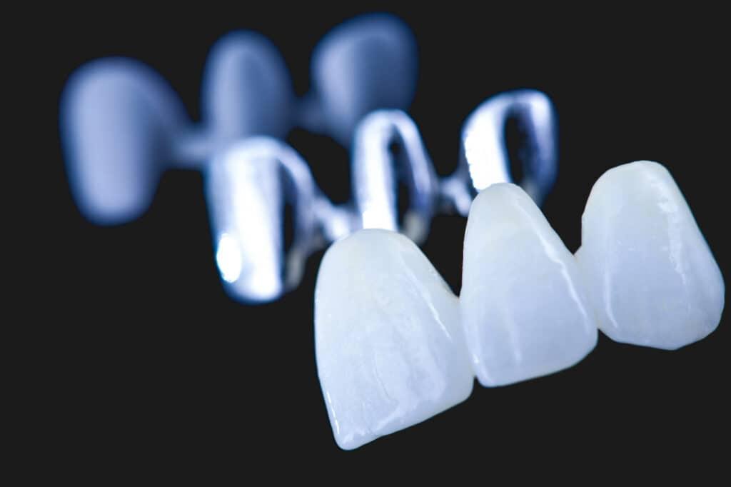 Естетични-възстановявания дентална клиника ImpressionDent