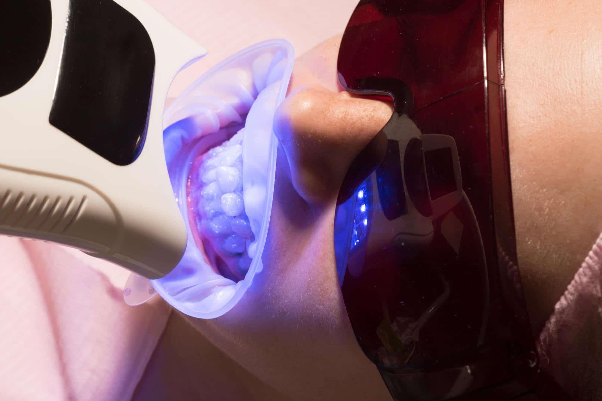 Професионално кабинетно избелване на зъби в дентална клиника Impression Dent. Най-добри цени