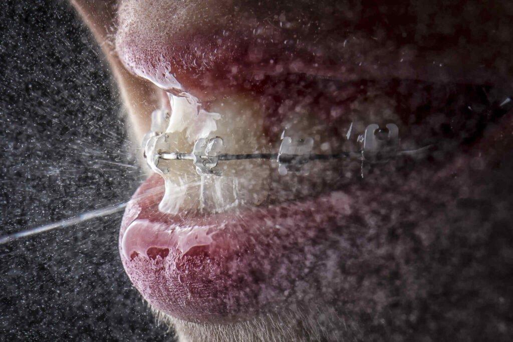 Ортодонтско-лечение-при-възрастни брекети