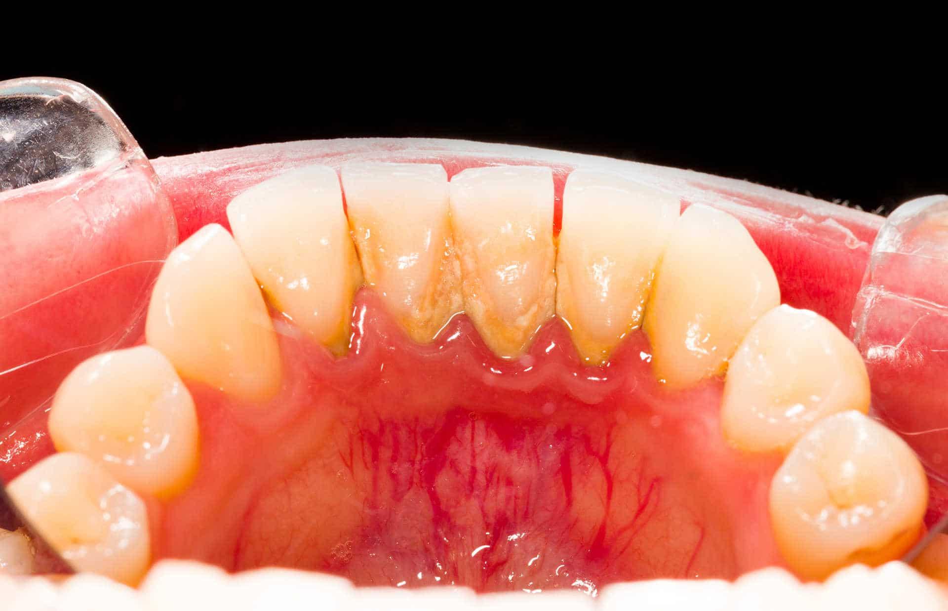 Почистване-на-зъбен-камък-плака-София-кв-Хладилника-Дентална-клиника-Impression-Dent