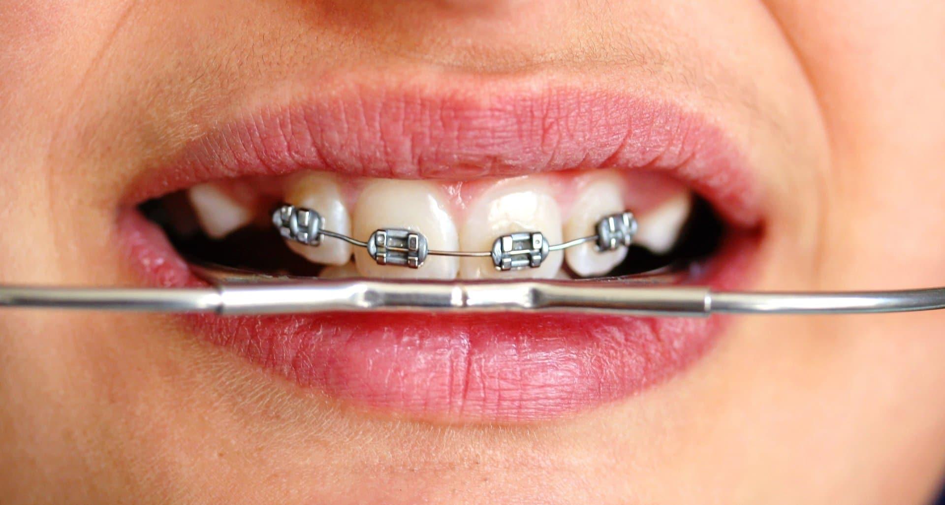 Headgear-Ортодонтия-за-деца-кв-Хладилника-Дентална-Клиника-Impression-Dent
