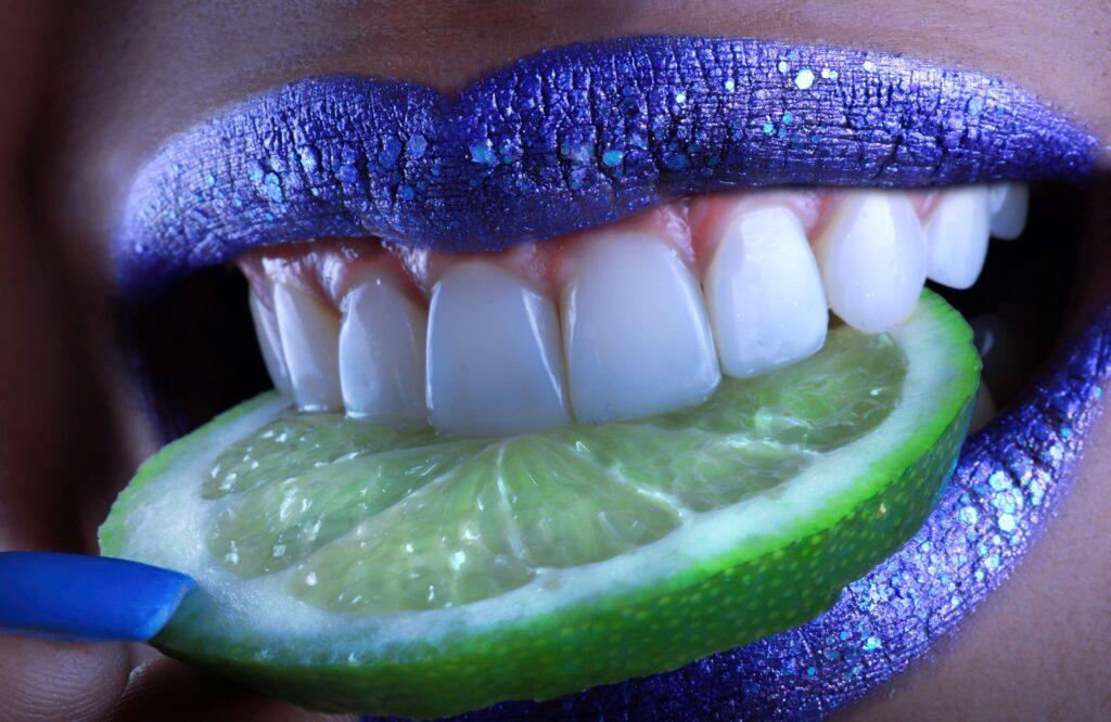 Фасети естетична стоматология от ImpressionDent София от д-р Бялев
