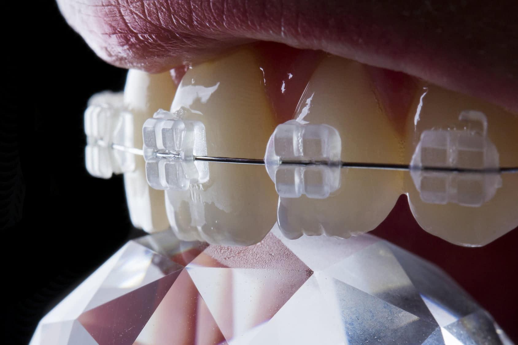 Прозрачни брекети ортодонтско лечение за възрастни дентална клиника Impression Dent София кв.Хладинлинка
