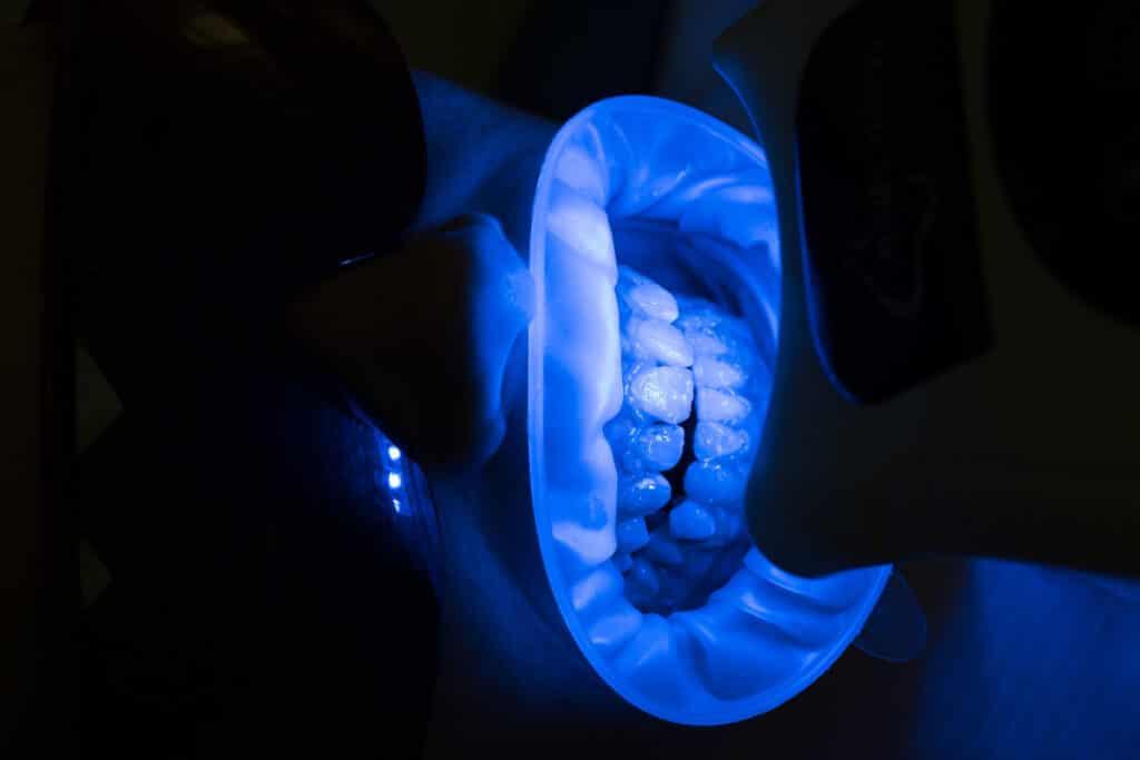 Какви са етапите на професионалното кабинетно избелване от стоматолог? Процедурата винаги е предшествана от консултация и преглед, при който се установява състоянието на зъбите и венците, какъв е оттенъкът на зъбите и какви резултати могат се очакват от избелването. В денталната клиника Impression Dent използваме възможно най-модерната медицинска апаратура, а благодарение на дългогодишния опит на д-р Бялев, предоставяме на пациентите си най-професионалните съвети. • Първата стъпка от работата ни е свързана с определяне на първоначалния цвят на зъбите чрез специална разцветка; • Почистване на зъбната плака и зъбен камък с ултразвук • Полиране на зъбите със специална паста • Поставяне на гингивална бариера, защитаваща меките тъкани от светлина и от избелващия гел, който се нанася върху зъбите. • Поставяне на избелващата система. • След избелването се отстраняват избелващия гел и гингивална бариера. При нужда от консултация с д-р Бялев, можете да се свържете с нас на: