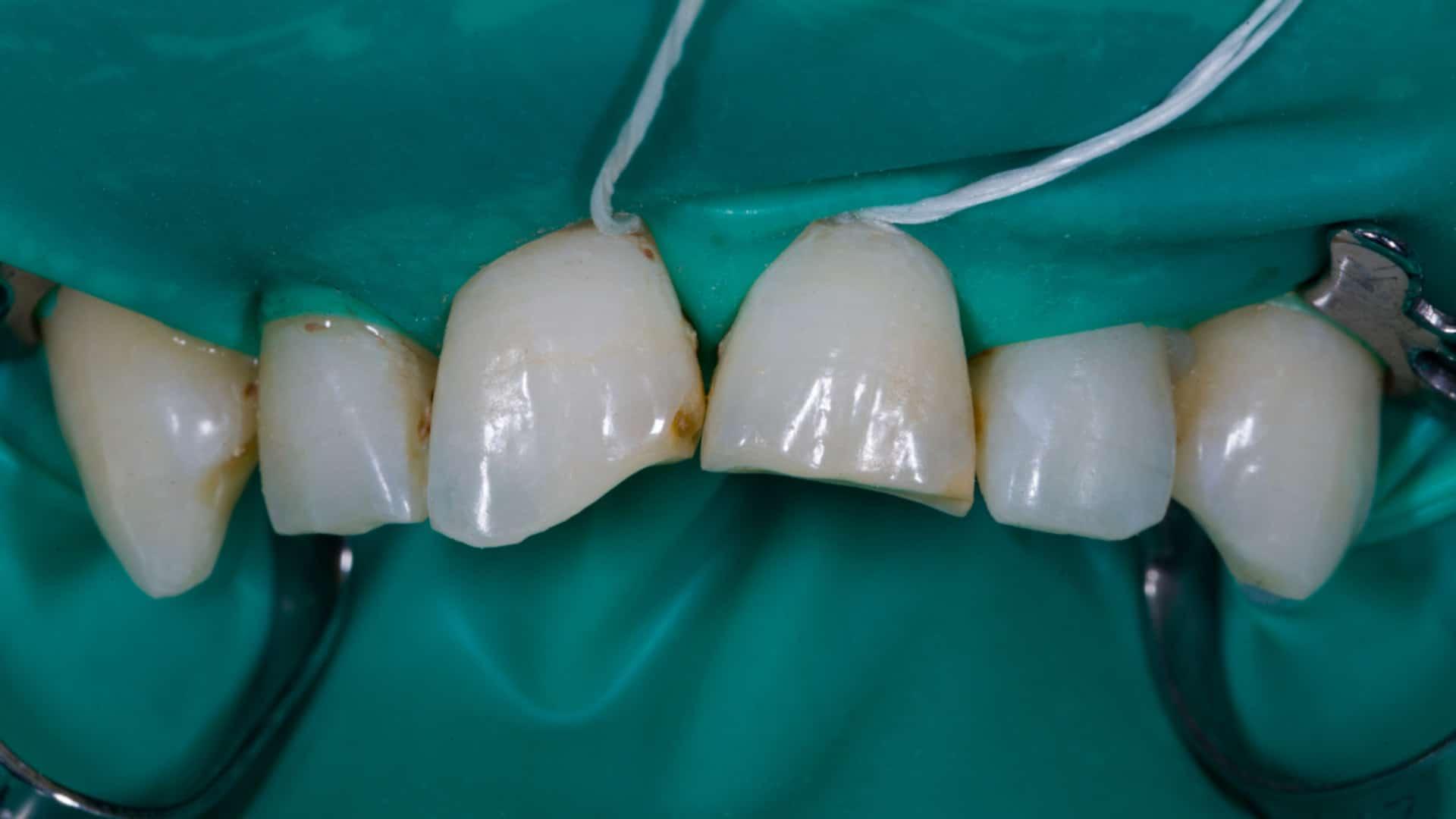 Бондинг-Impression-Dent-Дентална-Клиника-Резултат-Преди