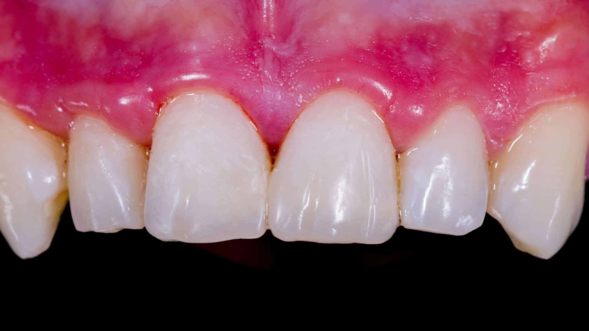 Бондинг-Impression-Dent-Дентална-Клиника-Резултат-след