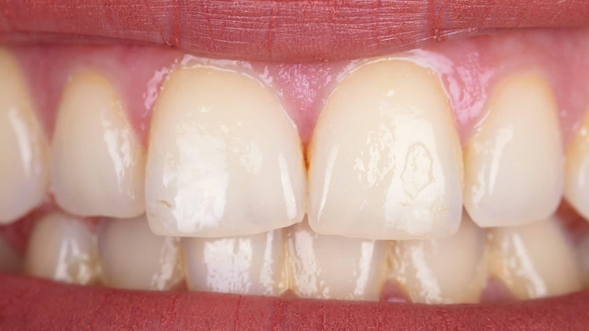 Избелване-на-зъби-преди-Дентална-Клиника-Impression-Dent-1