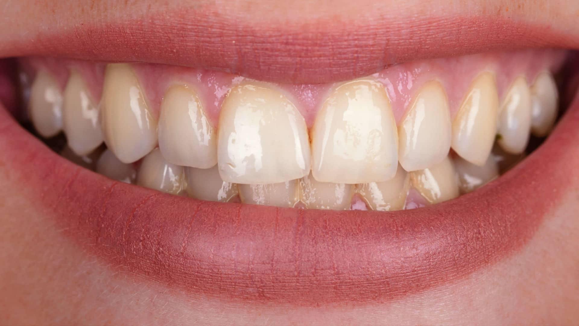 Процедура по професионално кабинетно избелване на зъби в дентална клиника Impression Dent резултат преди