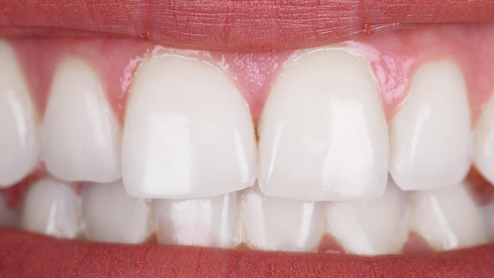 Избелване-на-зъби-след-Дентална-Клиника-Impression-Dent-2