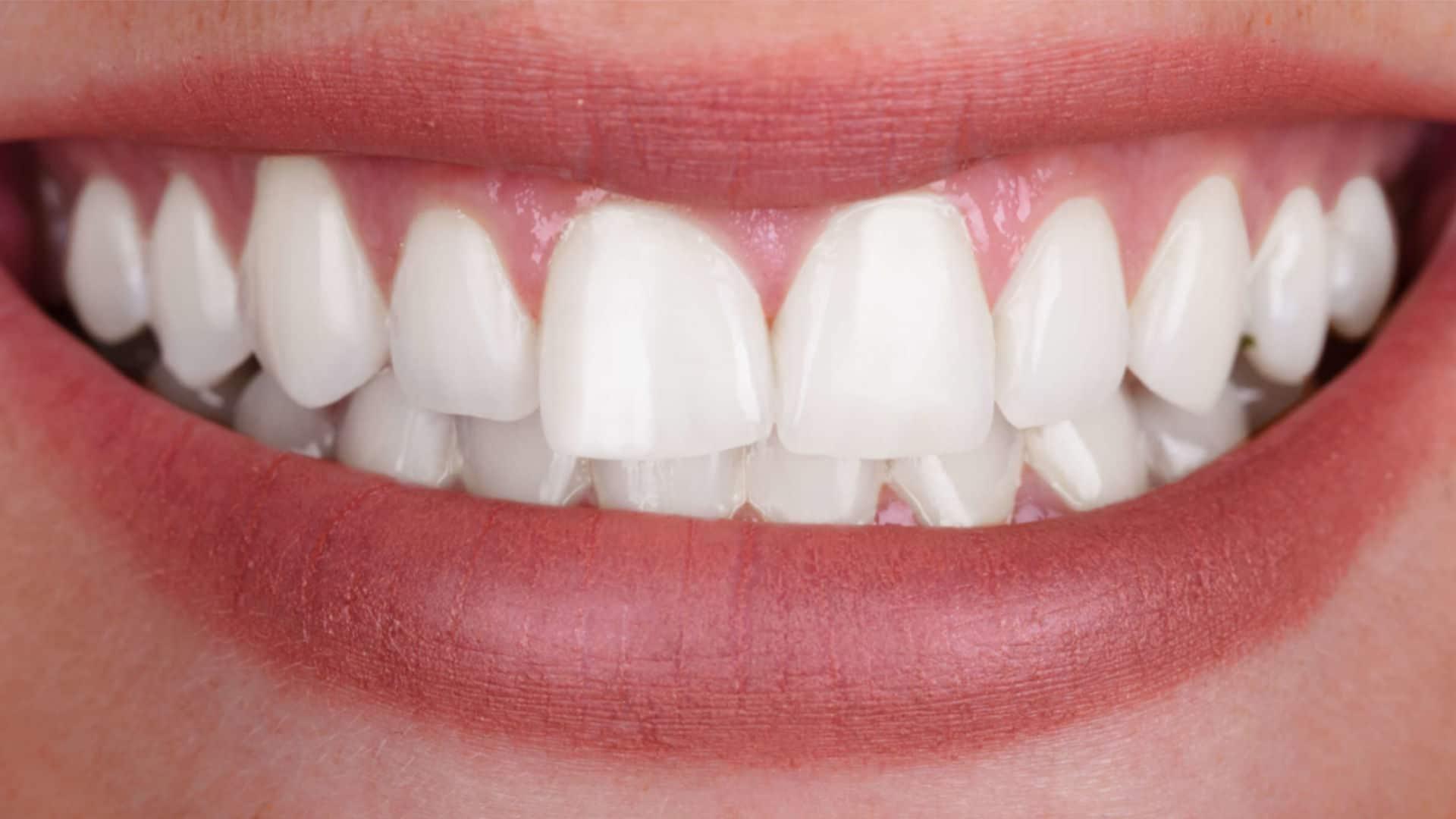 Процедура по професионално кабинетно избелване на зъби в дентална клиника Impression Dent резултат след