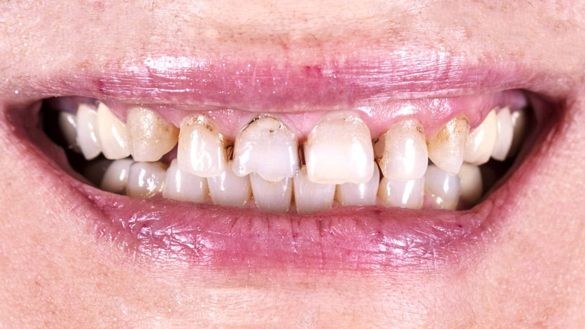 Поставяне на циркониеви коронки в дентална клиника Impression Dent София резултат - преди