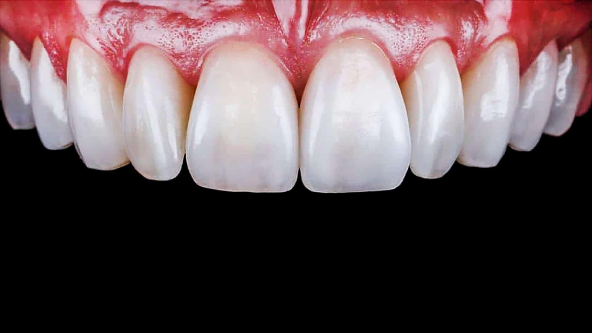Циркониеви-коронки-след-Дентална-Клиника-Impression-Dent