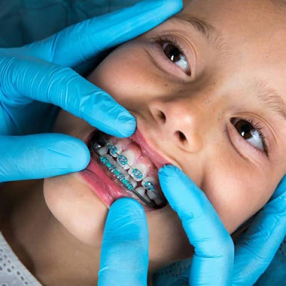 детско ортодонтско лечение дентална клиника Impression Dent гр.София