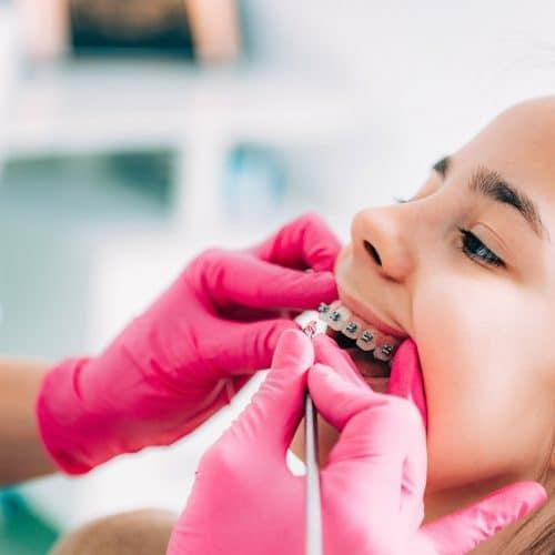 детско ортодонтско лечение