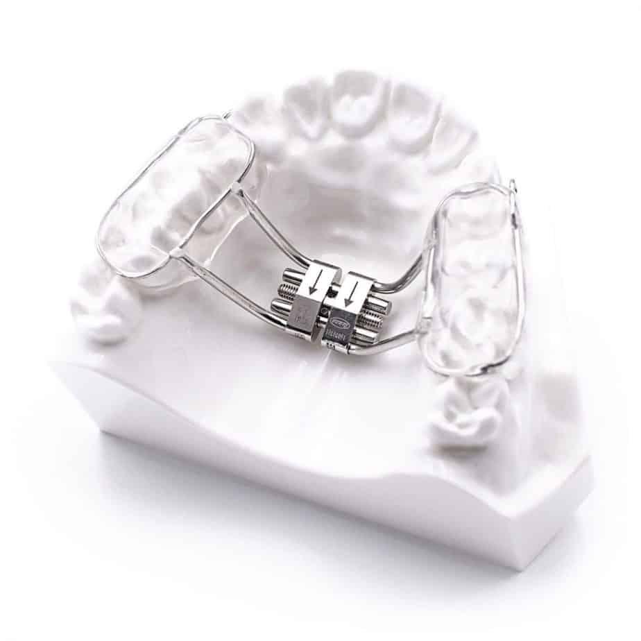 ортодонтско лечение дентална клиника Impression Dent гр.София