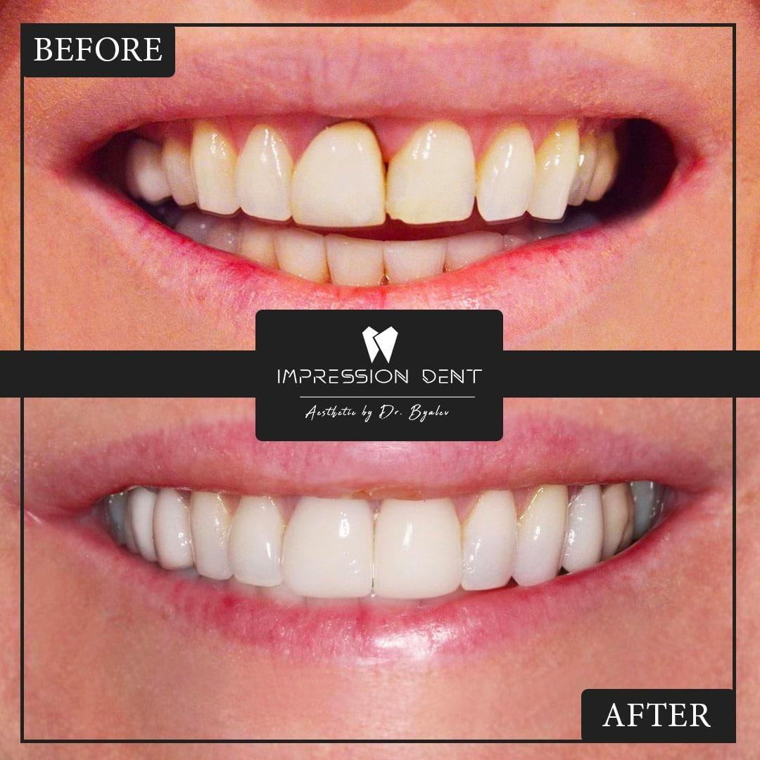 Зъбни Фасети Цена Качество Дентална клиника Impression Dent