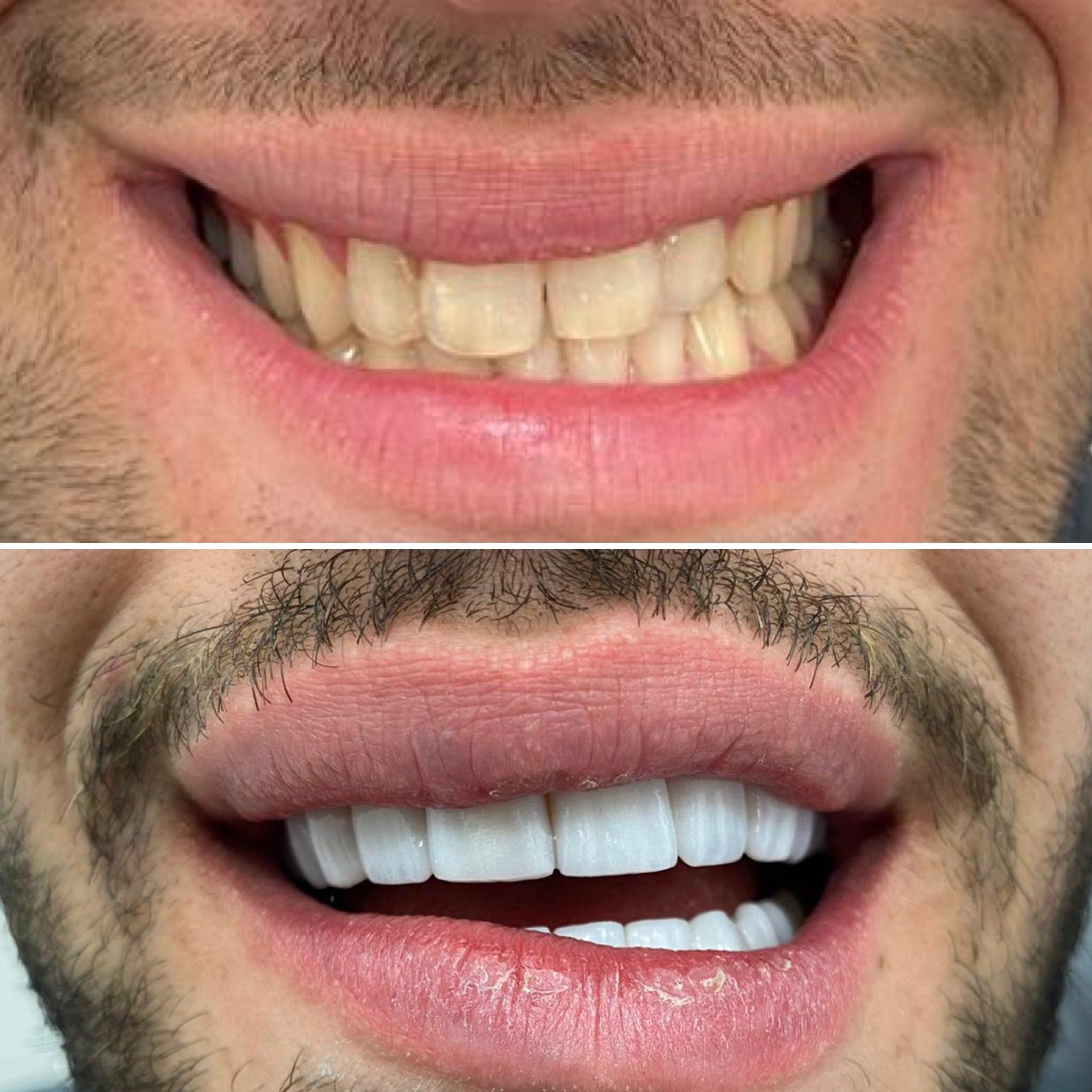 Фасети Цена Качество Дентална клиника Impression Dent