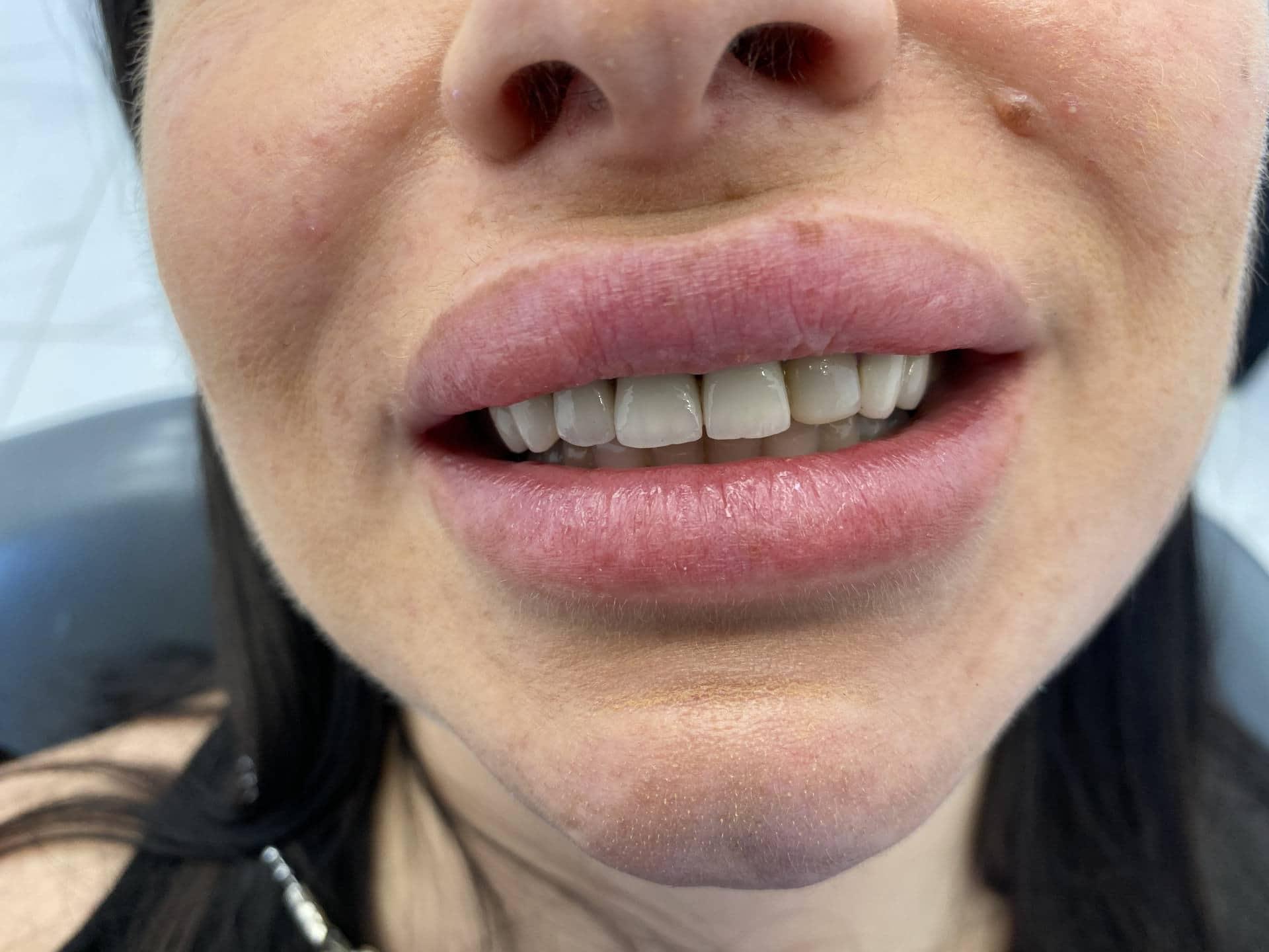 металокерака-зъби-клиничен случай
