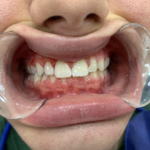 Клиничен-случай-Дете-Ортодонтия-Дентална-Клиника-Impression-Dent-брекети-резултат-след