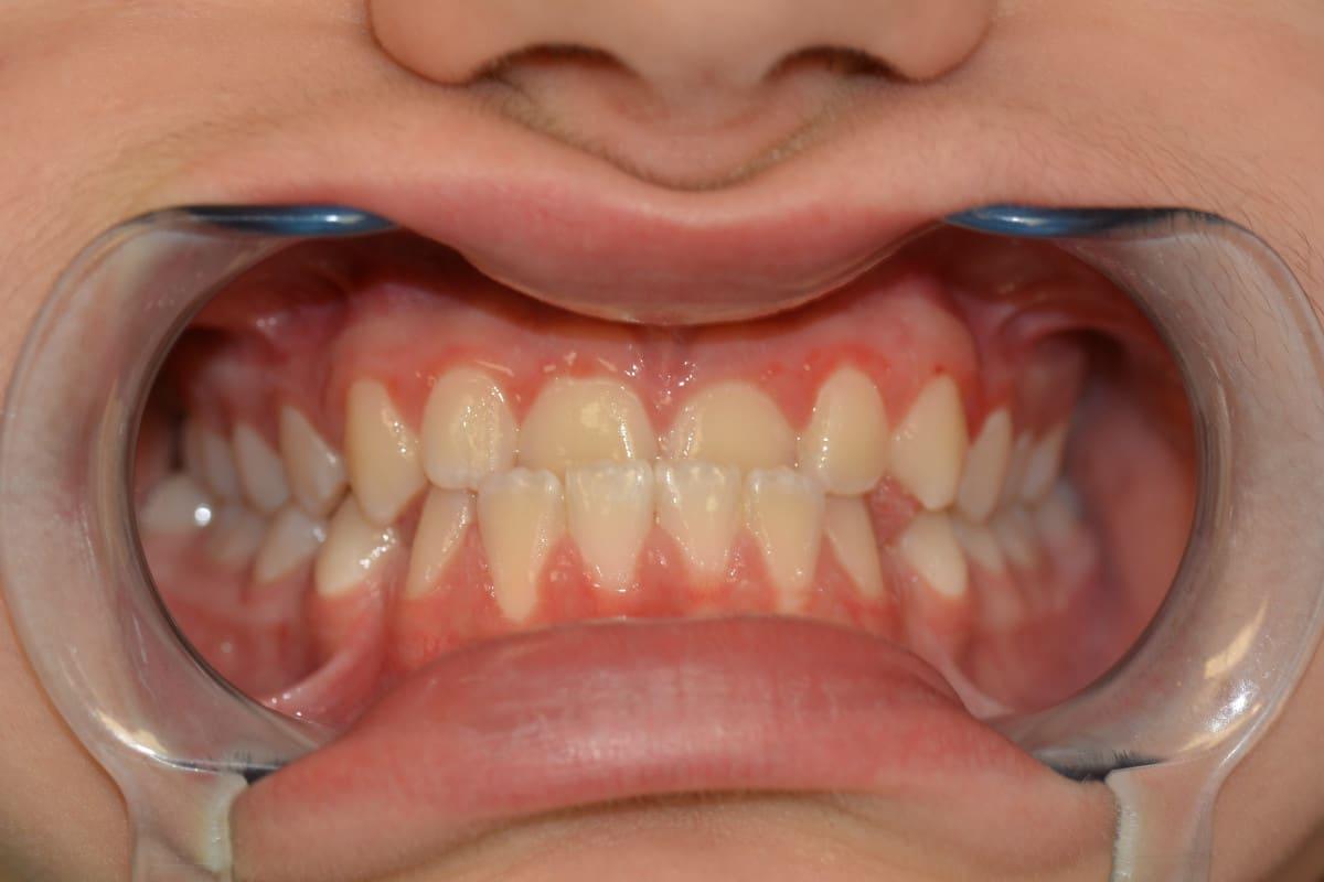 Клиничен-случай-Дете-Ортодонтия-Дентална-Клиника-Impression-Dent-резултат-преди