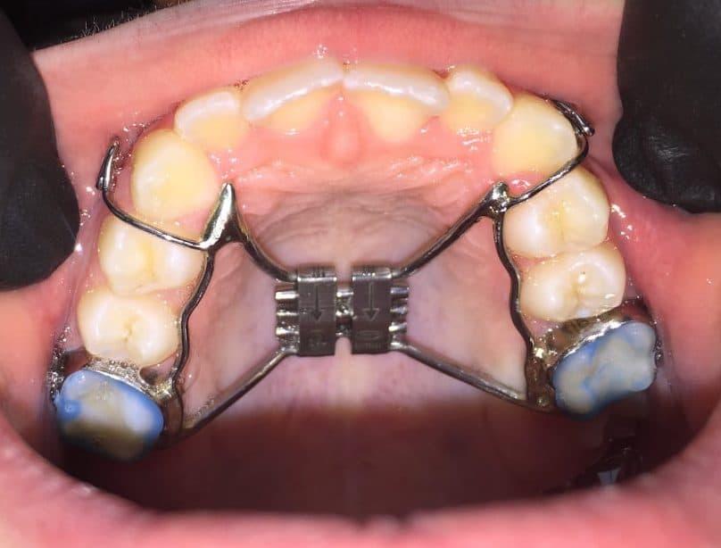 Клиничен-случай-Дете-Ортодонтия-Дентална-Клиника-Impression-Dent-RPE-апарат-брекети